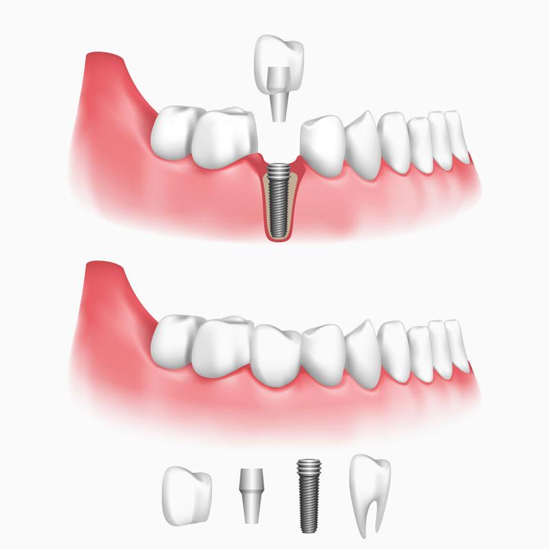 dental-implants-model.jpg