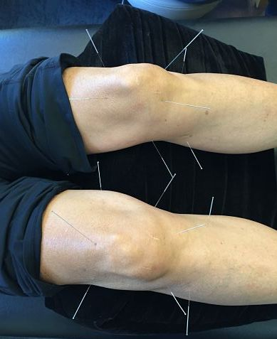 knee needles.jpg