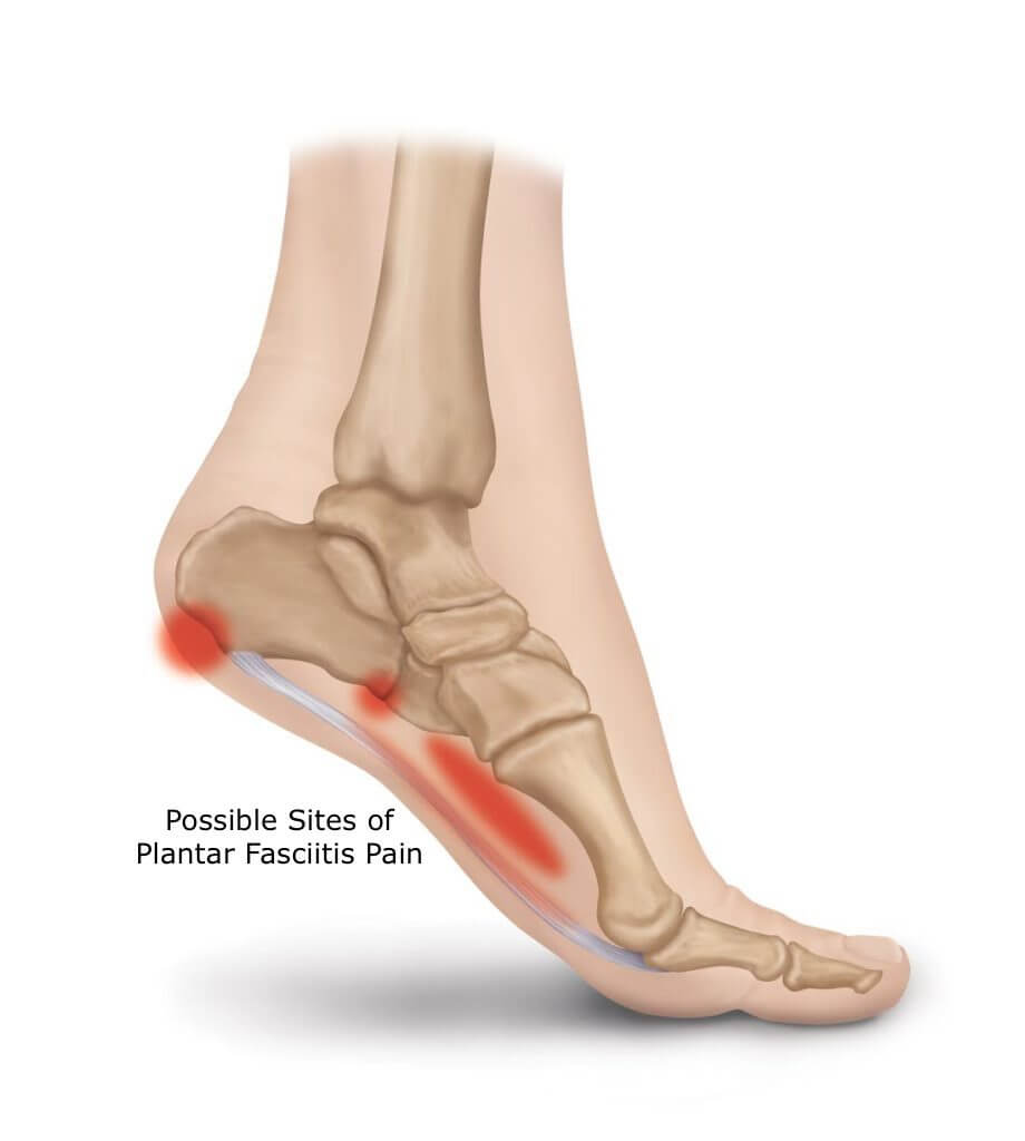 PF-pain-plantar-fasciitis-chiropractic-near-me-foot-treatment.jpg