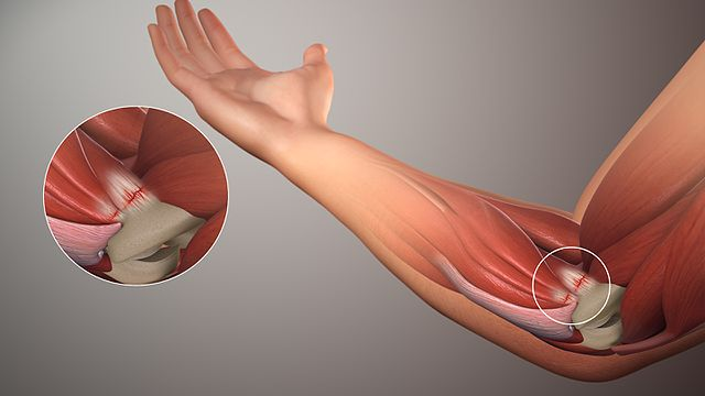 Tendonitis-Golfers-elbow-tennis-chiropractic-best-near-me.png