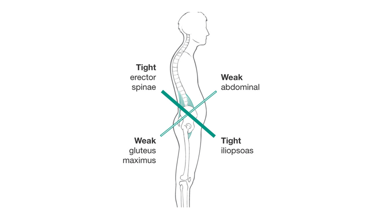 Lower-Cross-Syndrome-Posture-Pain-Minnesota-Movement-Chiropractic-Excelsior.jpg