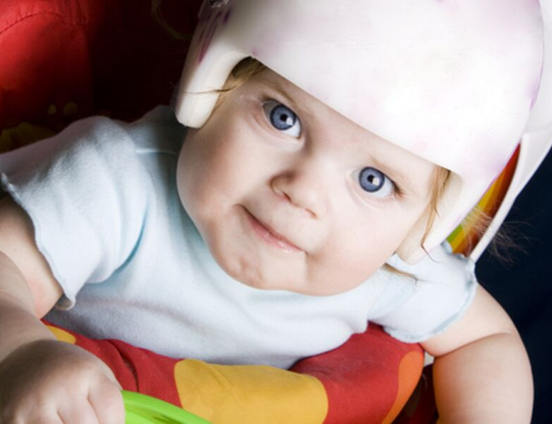 TUMMY TIME HELPS TO PREVENT FLAT HEAD SYNDROME