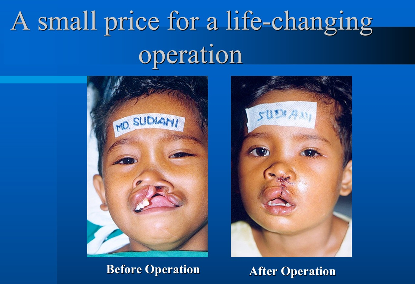 Cleft Lip and Palate.jpg