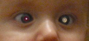 A child with esotropia and left leukocoria from retinoblastoma. Image from  Wikipedia .