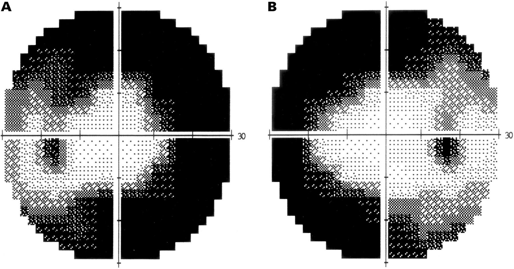 Visual field loss in vigabatrin demonstrating bilateral tunnel visual fields. ( Ravindran et al )