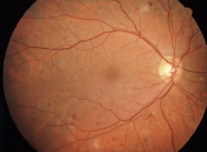 There are a few cotton-wool spots and intraretinal hemorrhages in this photograph, which doesn't really fit the ETDRS/International classification for true mild NPDR. Still, many who look at this photograph might still call this mild NPDR, because while there are multiple hemorrhages and cotton-wool spots, there are still < 20 per quadrant. This looser interpretation is mentioned in Kanski's Clinical Ophthalmology.  Image from  Flickr .   Photo credit:  Clare Gilbert   Published in:  Community Eye Health Journal Vol. 24, No. 75, September 2011 (www.cehjournal.org)