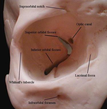 Bony features of the orbit.  Image from  Medscape .