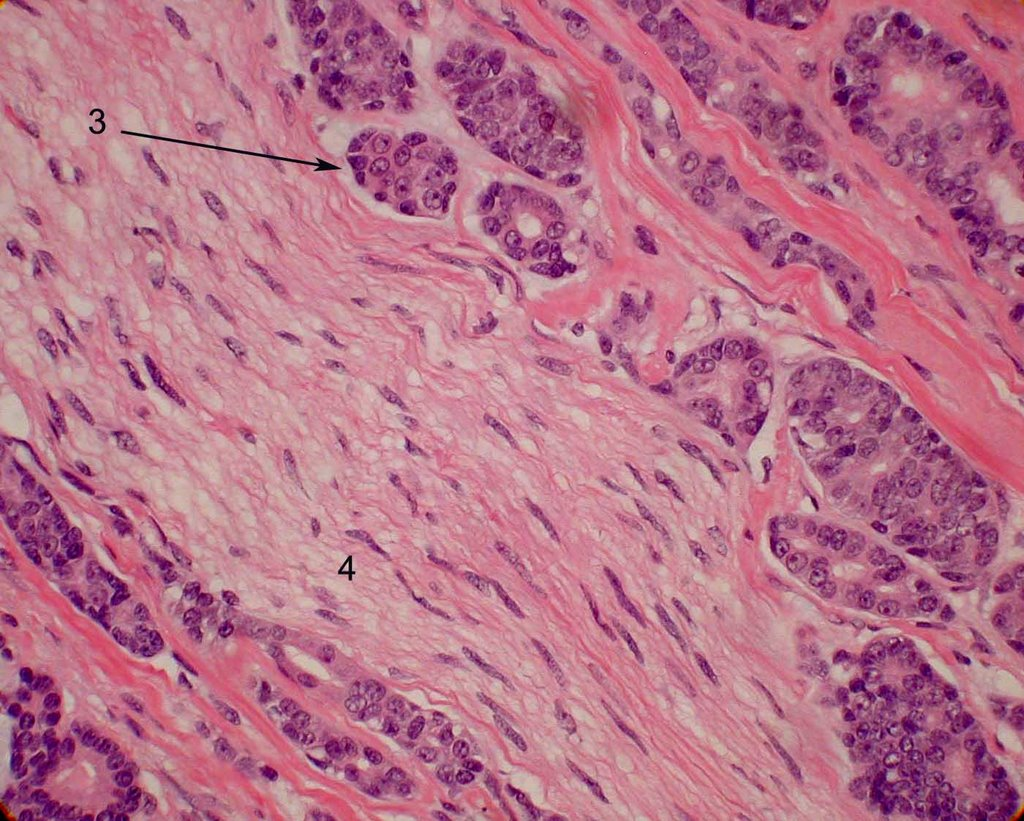 Histopathology of adenoid cystic carcinoma, cribriform type. This is another example of perineural invasion, but with the ductal cells (3) surrounding normal nerve tissue (4) rather than the blue basaloid cells.  Image credit:  Mission For Vision .
