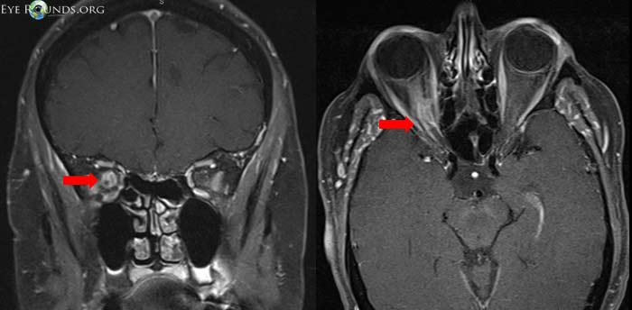 MRI of a patient with a right optic nerve sheath meningioma (red arrows).  Image from:  University of Iowa, EyeRounds.org .