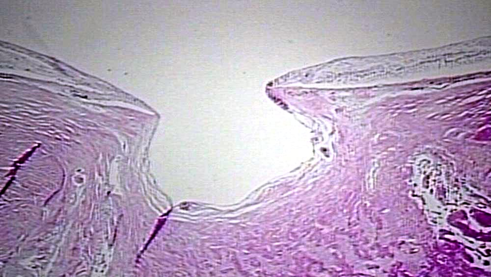 Histopathology of optic nerve hypoplasia. It is described as decreased number of ON axons with normal mesodermal elements and glial supporting tissue.  Image credit:  pathguy.com .