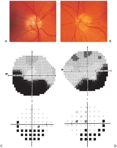 Inferior visual field defects associated with superior segmental optic nerve hypoplasia.  Image credit:  Fovea.ir .