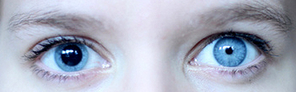 Image credit (modified for educational use):   http://www.anatomybox.com/wp-content/uploads/2011/12/600anisocoria.jpg