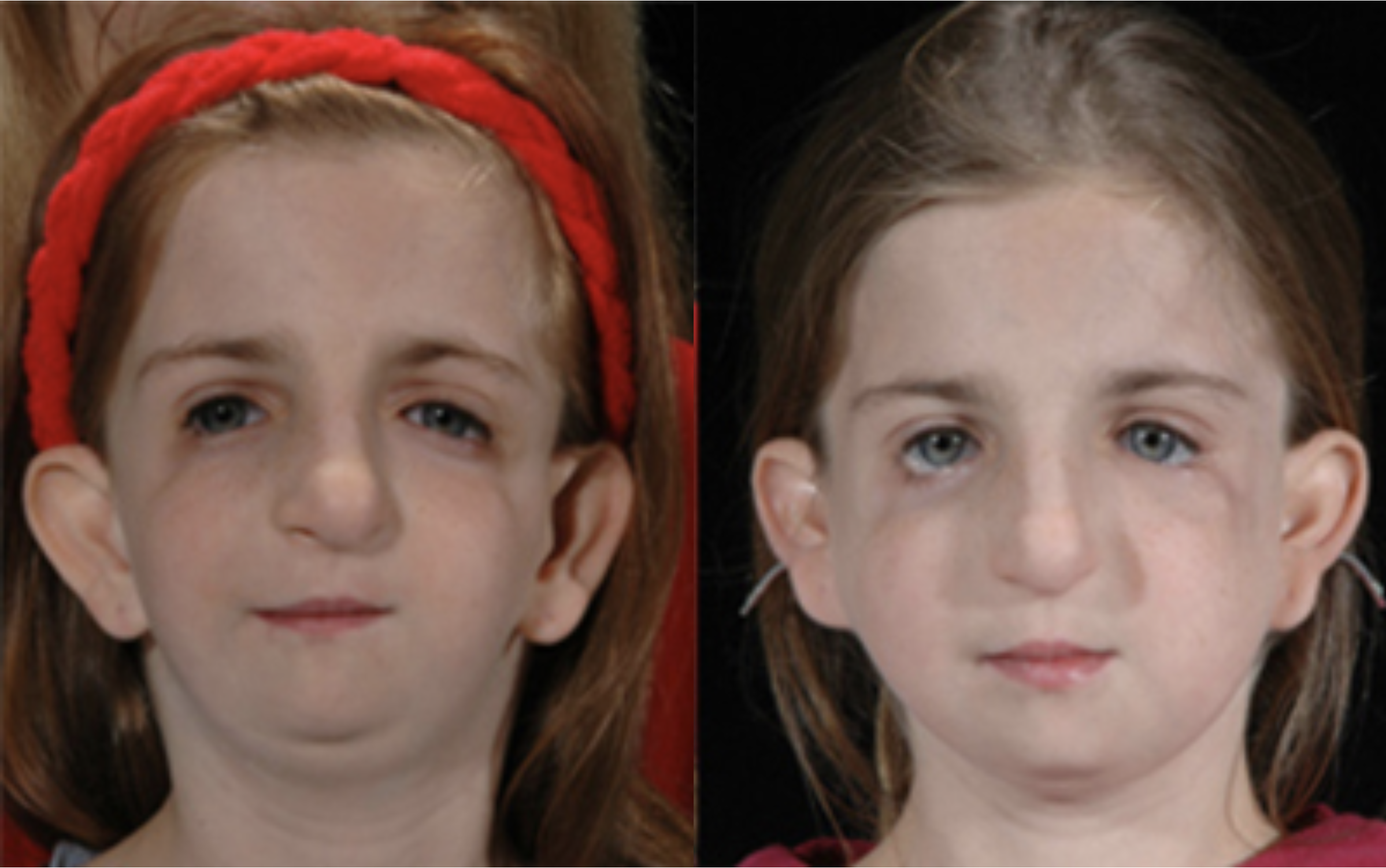 Treacher Collins-Franceschetti Syndrome, before and after surgery.  Image credit:  craniofacial.net .