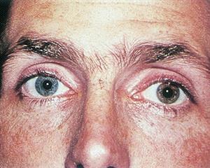 Iris heterochromia.  Image credit:  American Academy of Ophthalmology .