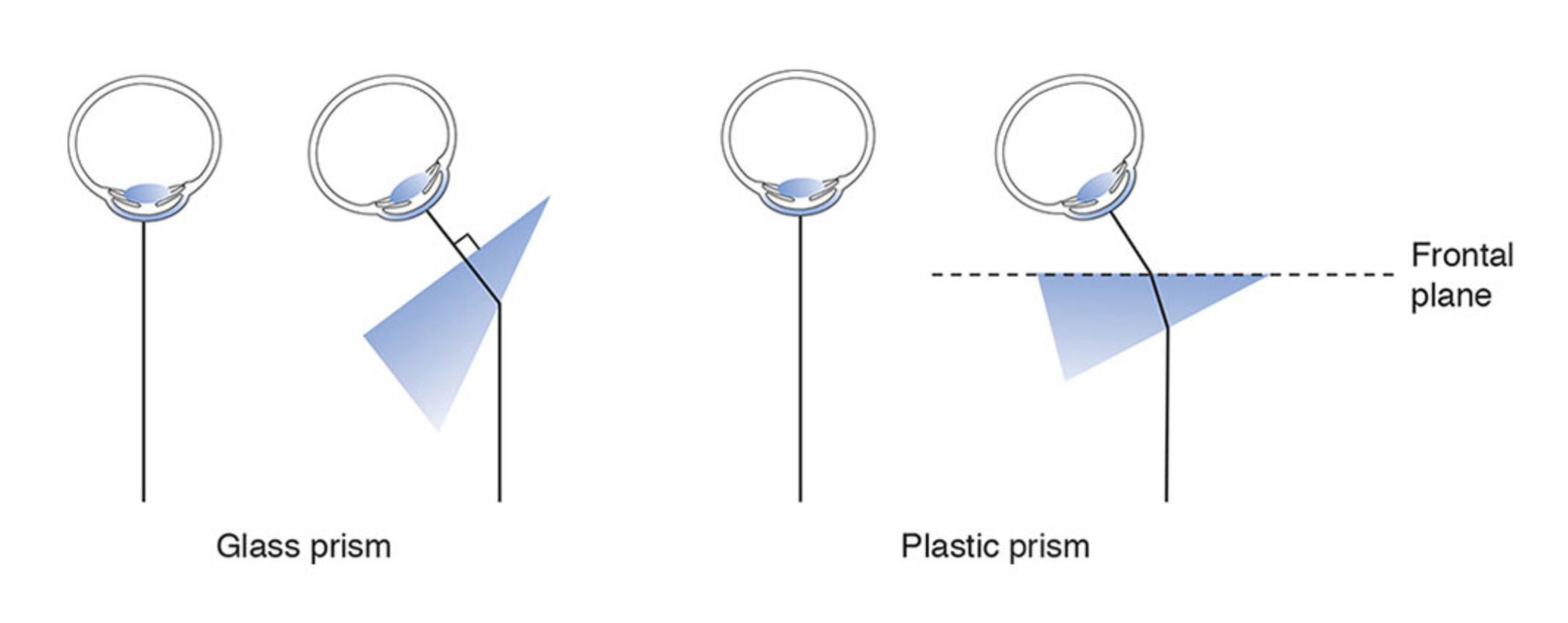 Correct positions for holding glass and plastic prisms.  Illustration developed by Edmond H. Thall, M.D., and Kevin M. Miller, M.D., and rendered by C. H. Wooley.  Image credit: American Academy of Ophthalmology. Used with permission.
