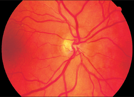 Hyperopic optic nerve (Entokey).jpg