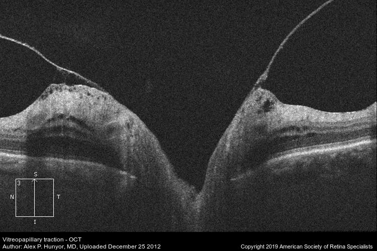 Vitreopapillary traction (ASRS-RIB-Image-2916).jpg