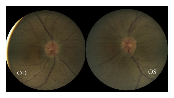 Vitreopapillary traction 4 - color fundus photos (Houle and Miller).jpg