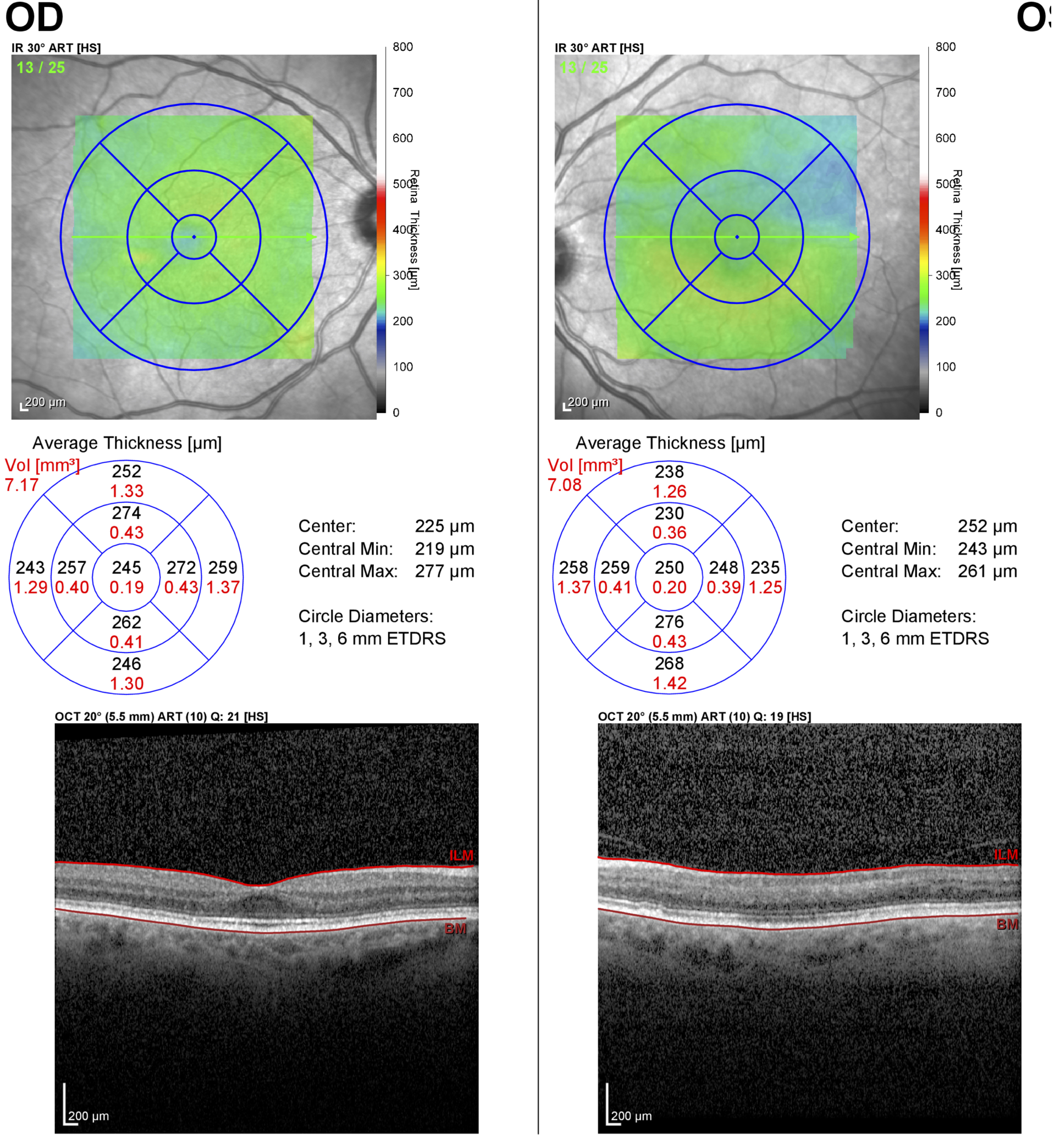 Optical coherence tomography of the macula showing loss of the inner retina in branch retinal artery occlusion (different patient, left eye).  In contrast to the previous OCT, there is a complete loss of the foveal contour and the inner layers of the retina are thinned and less defined than the normal right eye.