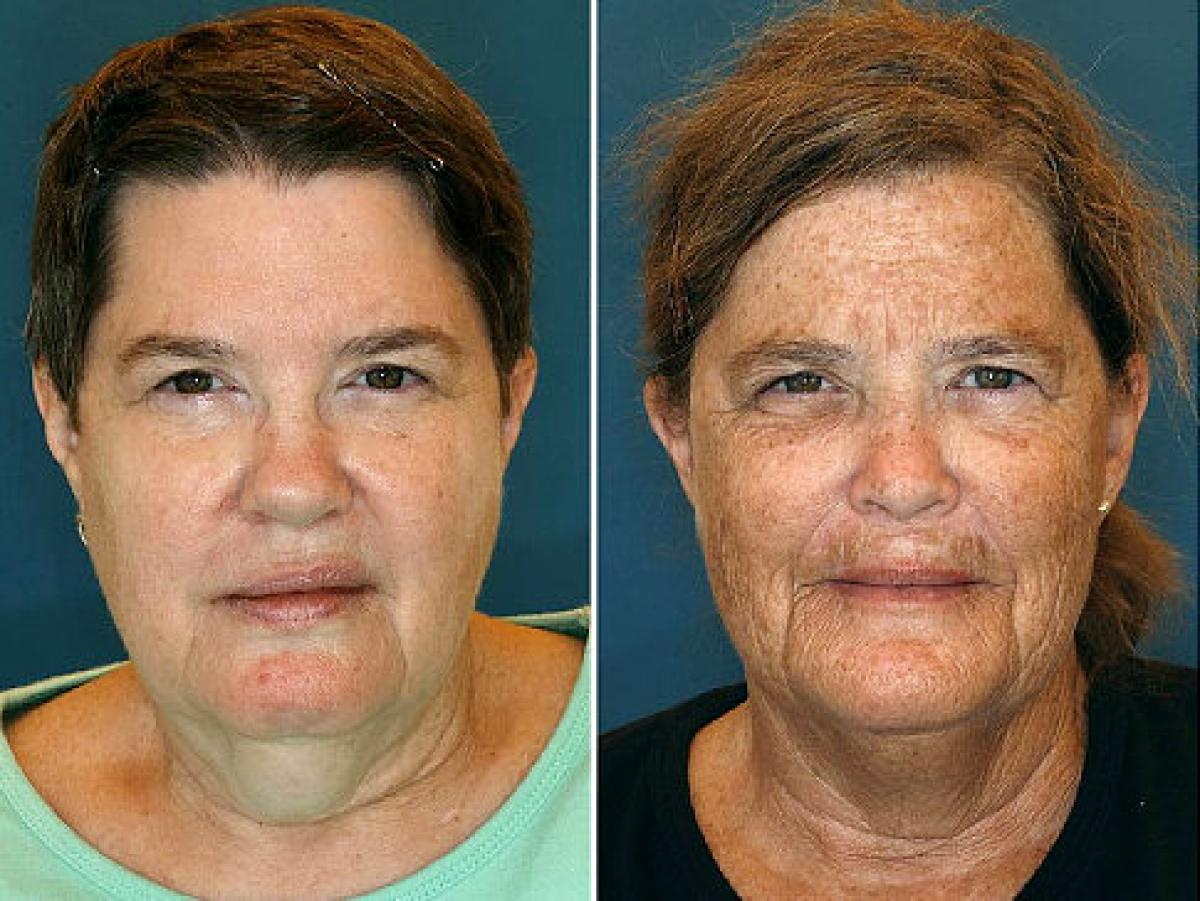 Identical twins Jeanne and Susan — one uses sunscreen and the other doesn't.