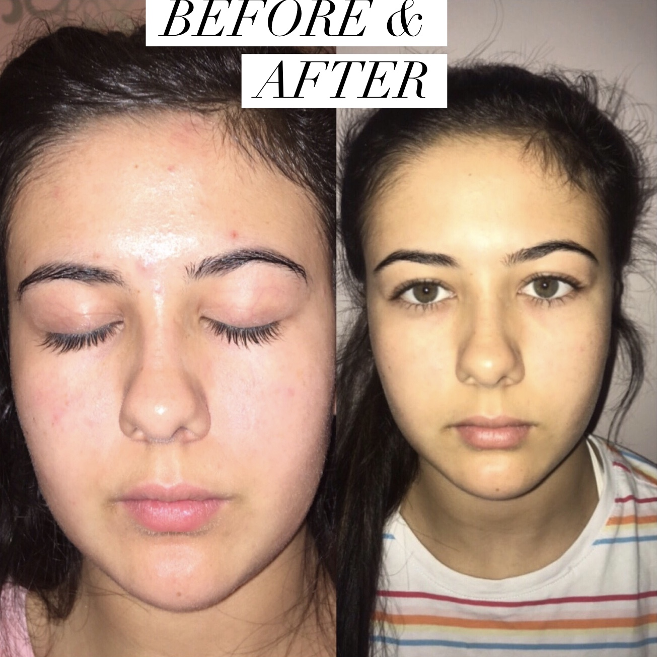 14 student - She had very sensitive skin, and we had to focus on calming and healing her skin. It took 6-7 months in the before and after using the full routine day and night. The products helped reduce redness, and detoxify her skin. Toward the end of her skin journey she only needed to use the MIRACLE WATERS Face Wash, CLEARING Face Cream, CALMING Facial Spritz, and THE ULTIMATE DETOX Face Mask (2 times a week)'I never knew what to do when I started to get acne, it was a bit shocking as it came up all of a sudden. I really like the products, and am happy my skin is now clear and calm'