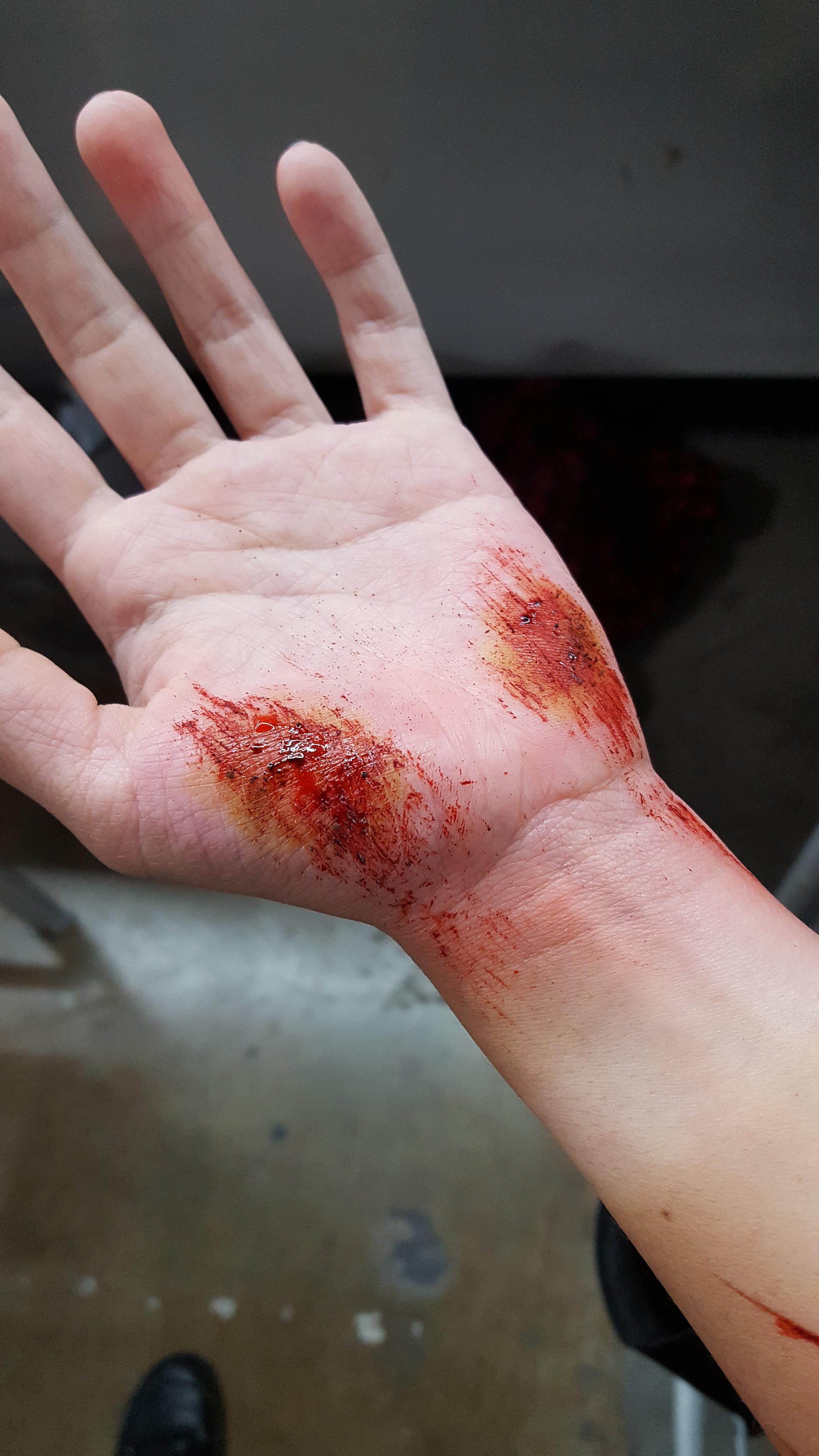 wounds (24).jpg