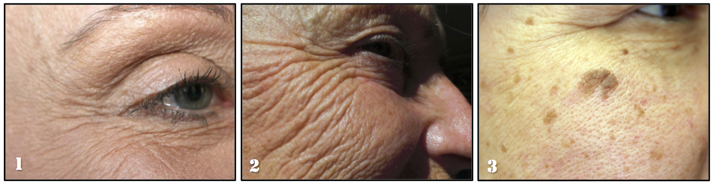 Lasers for Wrinkles Lines Facial Aging