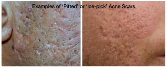 scars_ice-pick