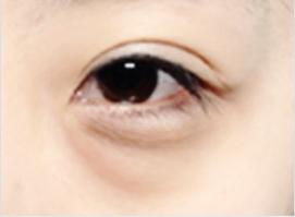 C: Moderate eye-bag