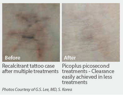 Picoplus-recalcitrant-tattoo-removal.png
