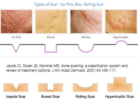 Types of Scarring