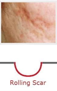 Acne-Scars-performanceskin.jpg