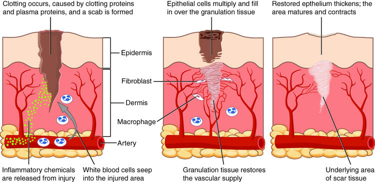 Process of scar formation: initial clotting of the wound, followed by closure of the wound by tissue growth, and eventual maturation of the scar