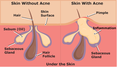 Inflammation of the sebaceous gland causes acne and pimples