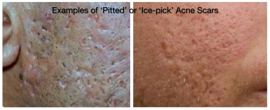 """Examples of """"Pitted"""" or """"Ice-Pick"""" Acne Scars"""
