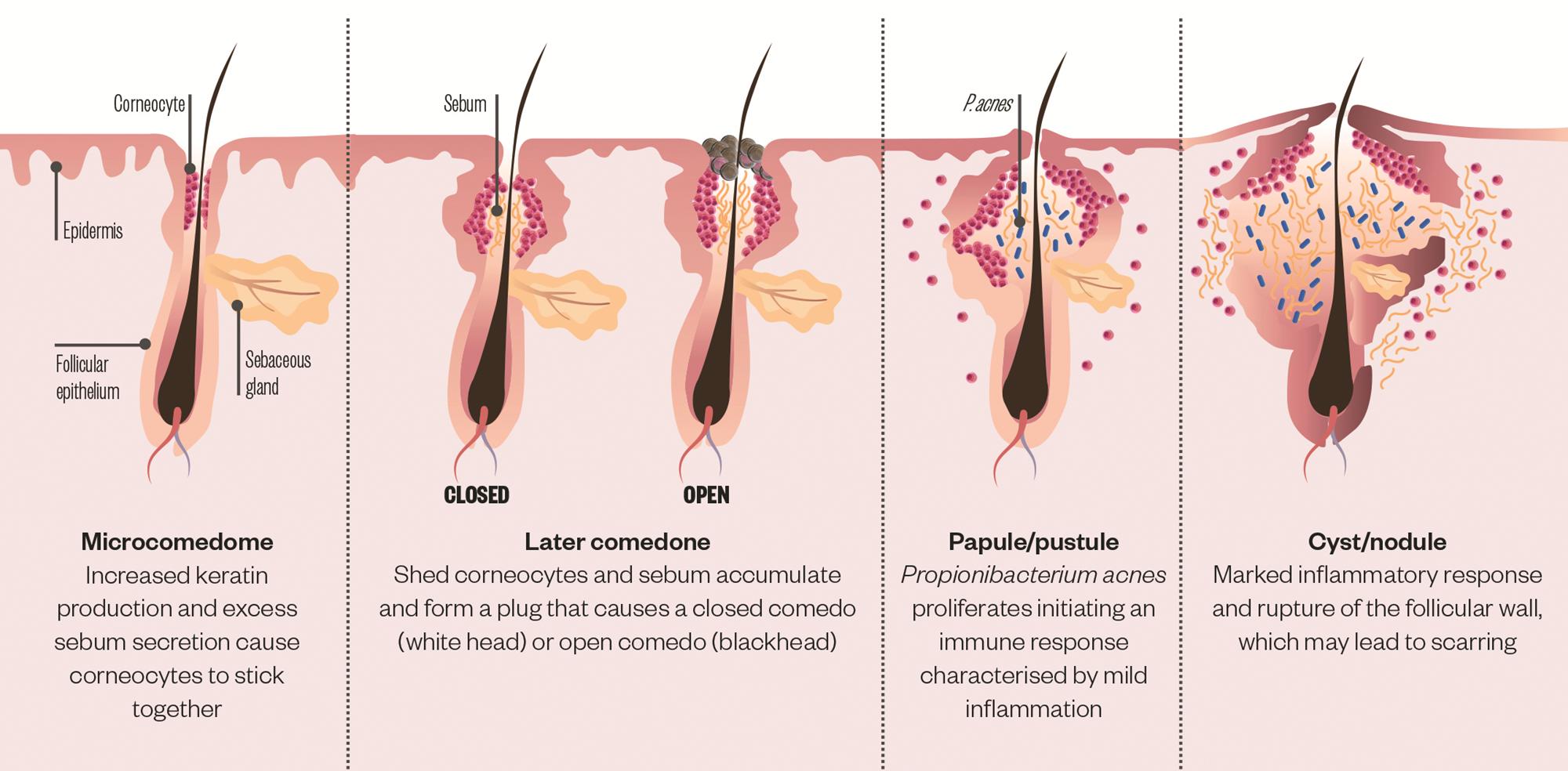acne-pathogenesis-17.png