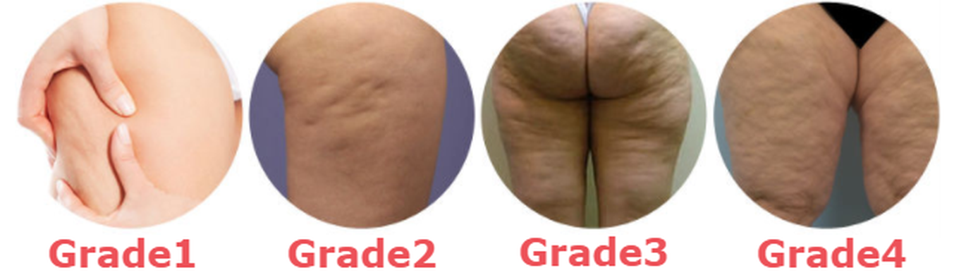 different grades of cellulite.png