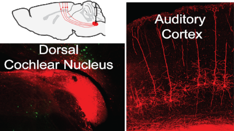 Molecular/genetic approaches enable manipulation of specific auditory pathways in vivo.