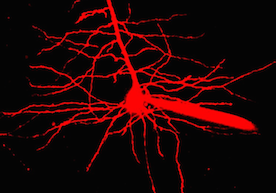 A1_neuron-3.png
