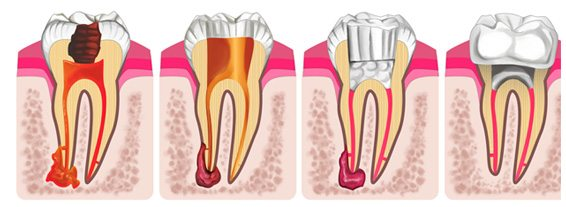 root-canals-1.jpg
