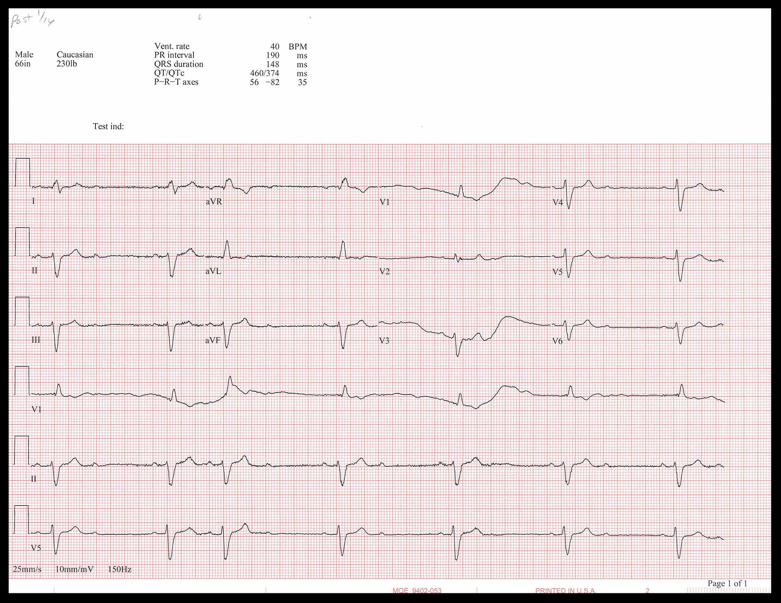 1-16 EKG_Page_1.jpg