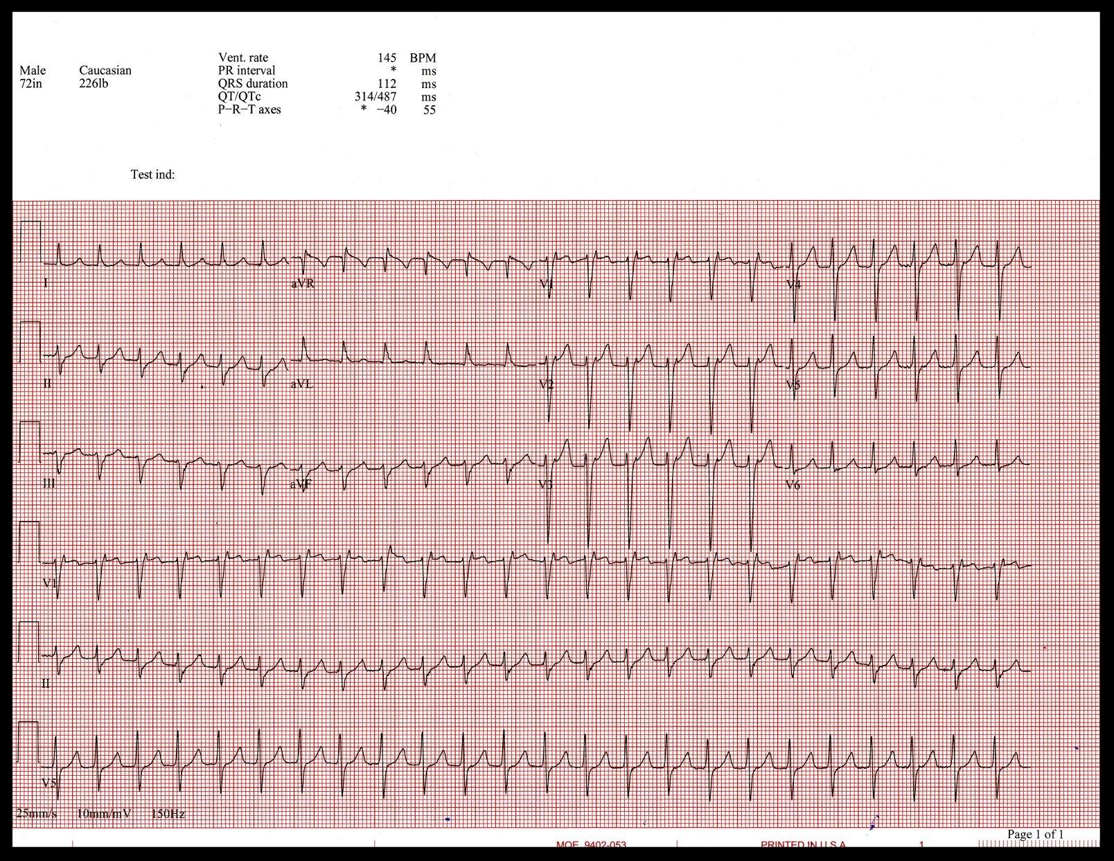 EKG scan001 (1).jpg