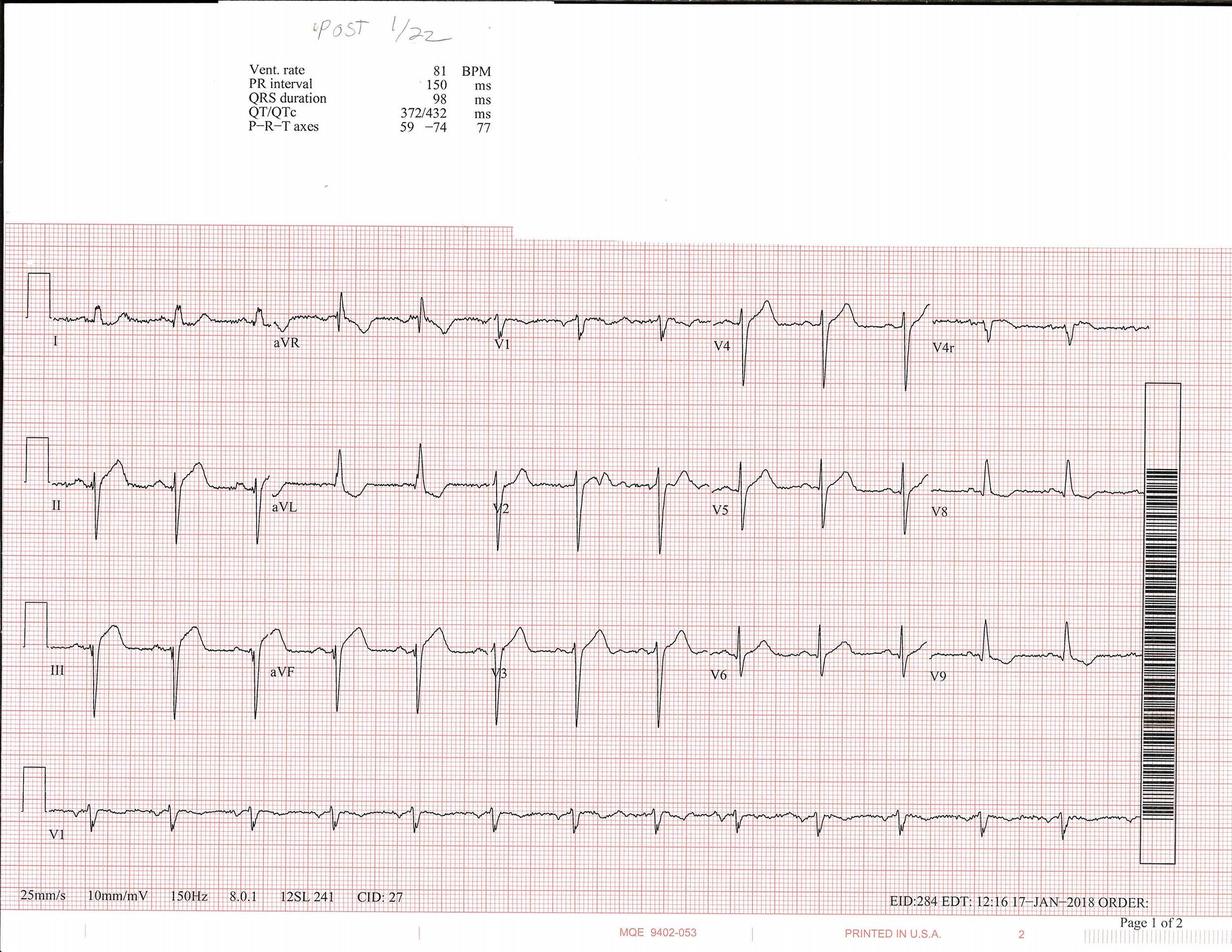 1-22 EKG_Page_1.jpg