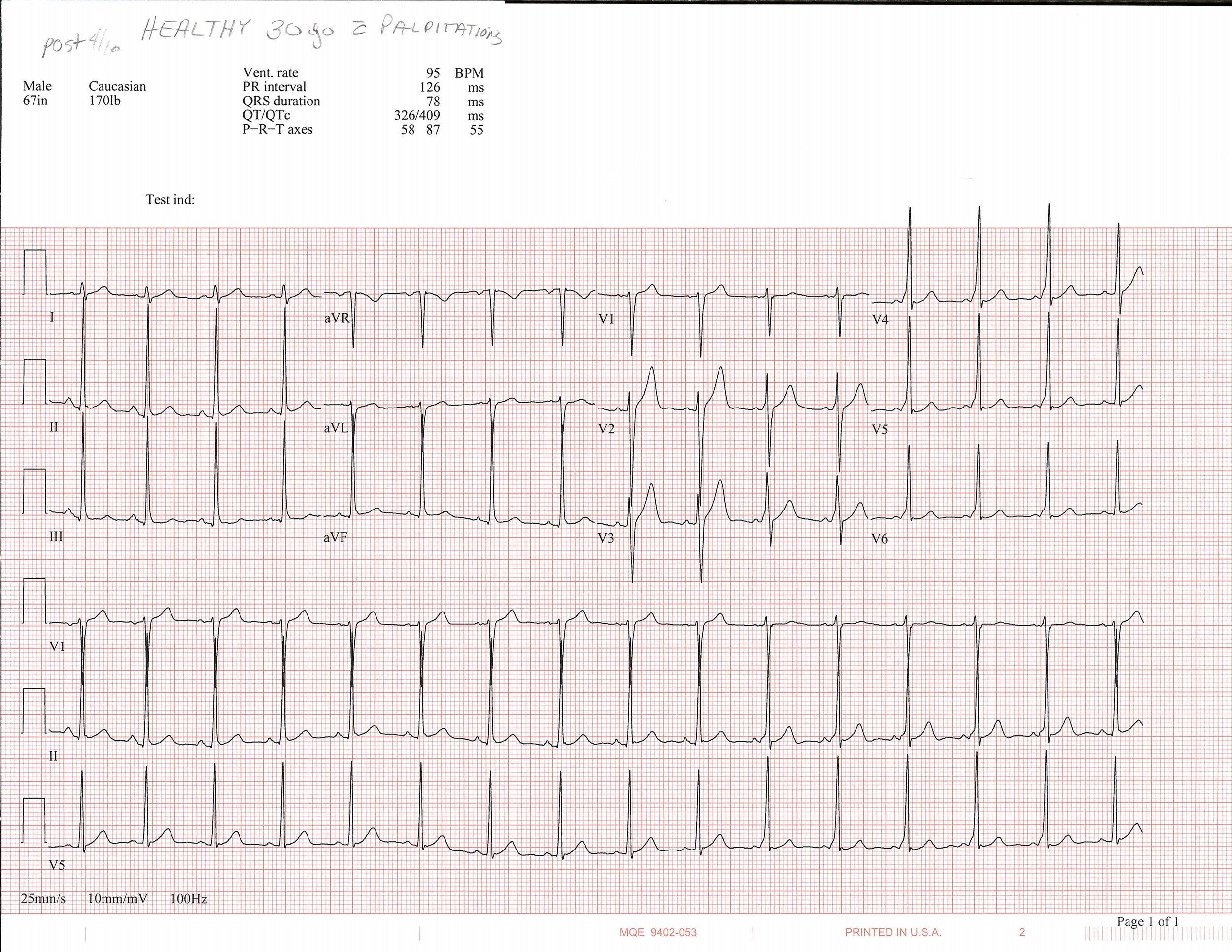 4-10 EKG_Page_1.jpg