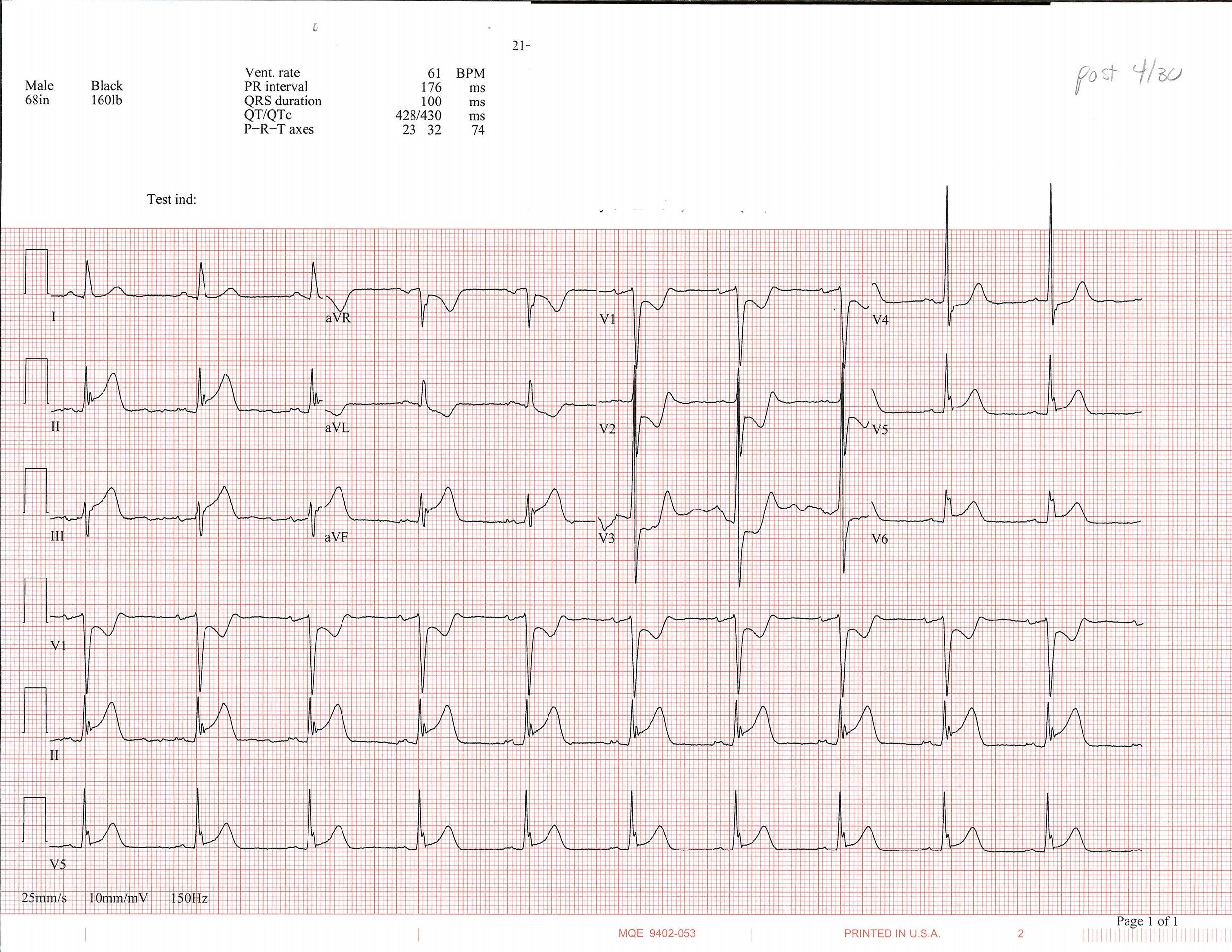 EKG_7