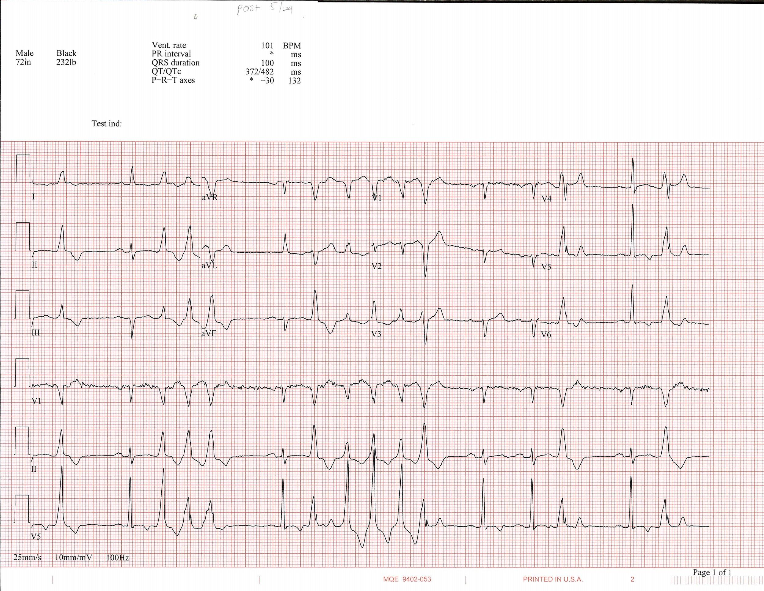 5-29 EKG_Page_1.jpg