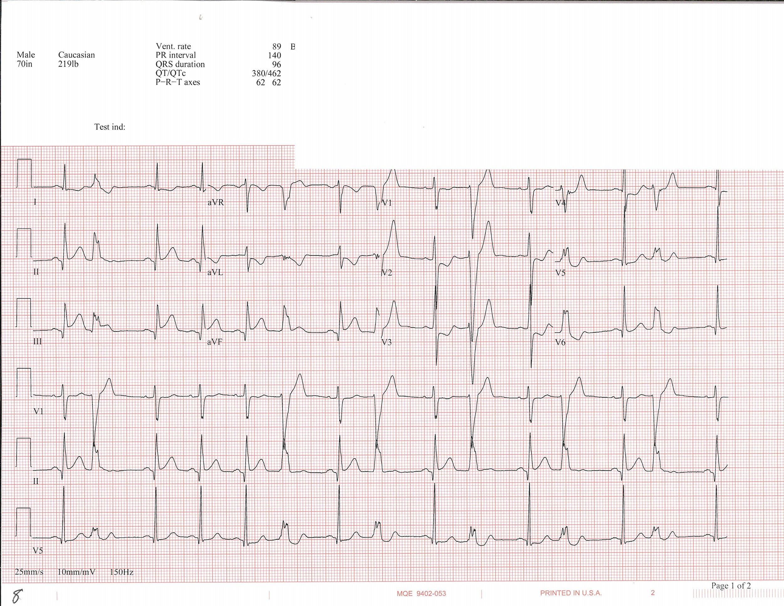 EKG_8.jpg