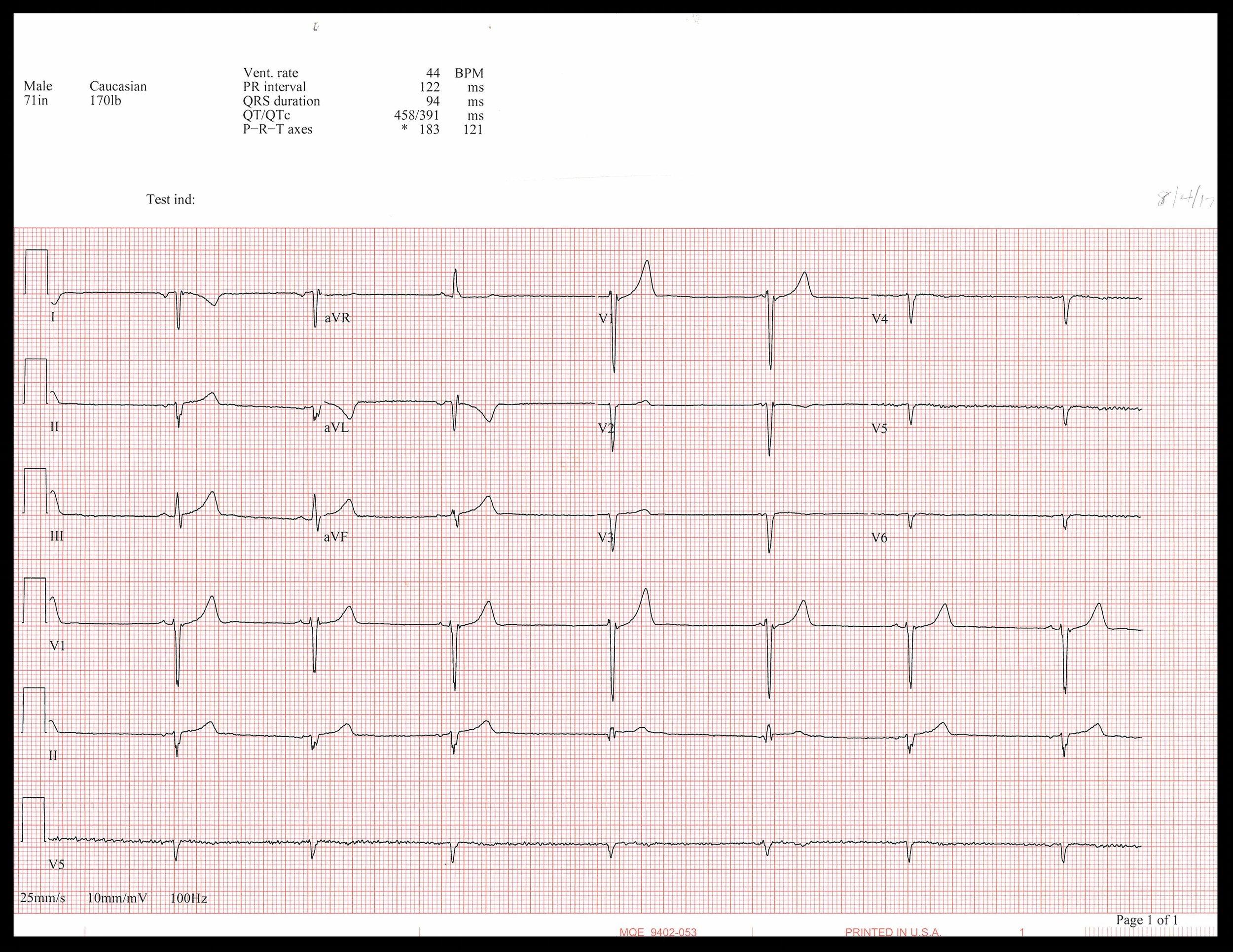 8-4 EKG_Page_1.jpg
