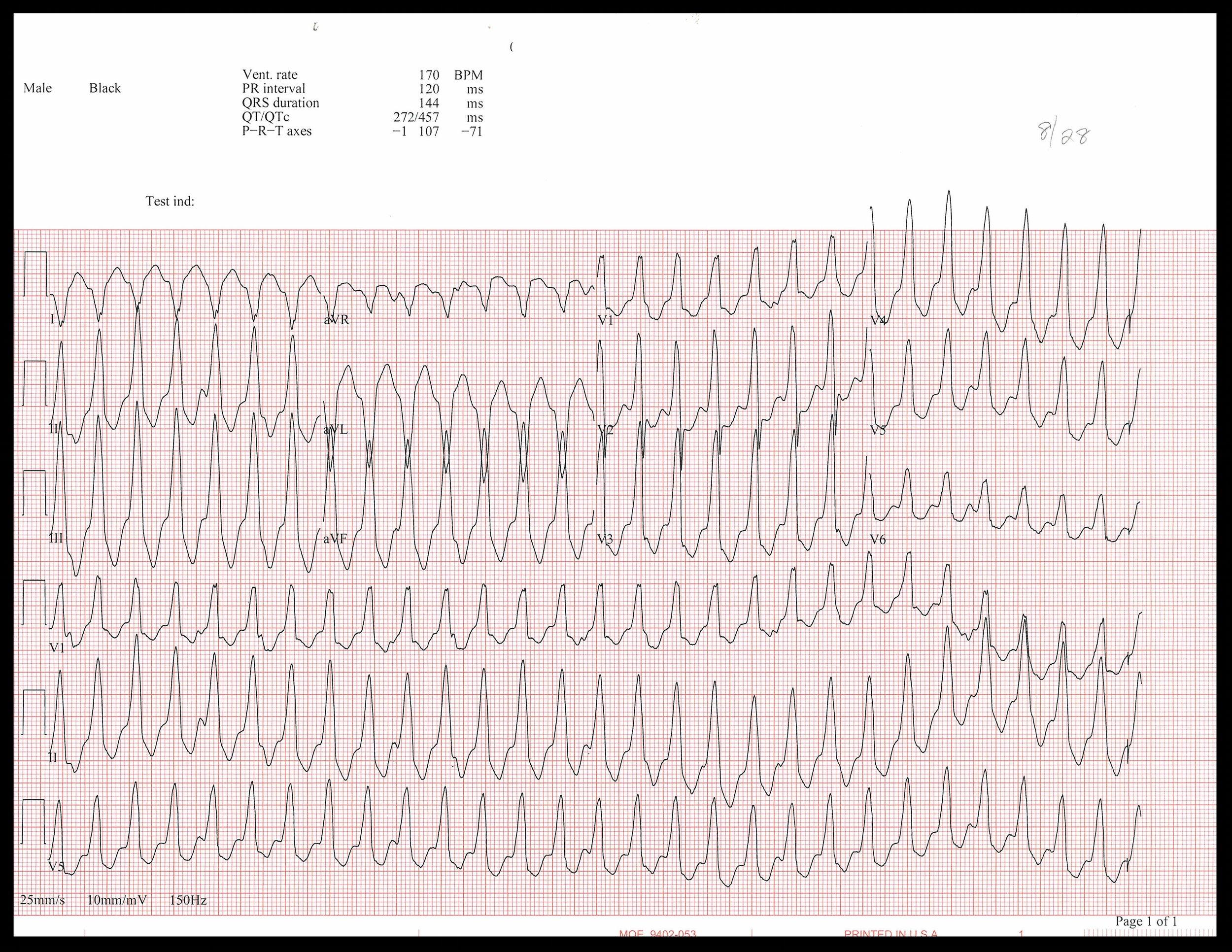 8-28 EKG_Page_1.jpg