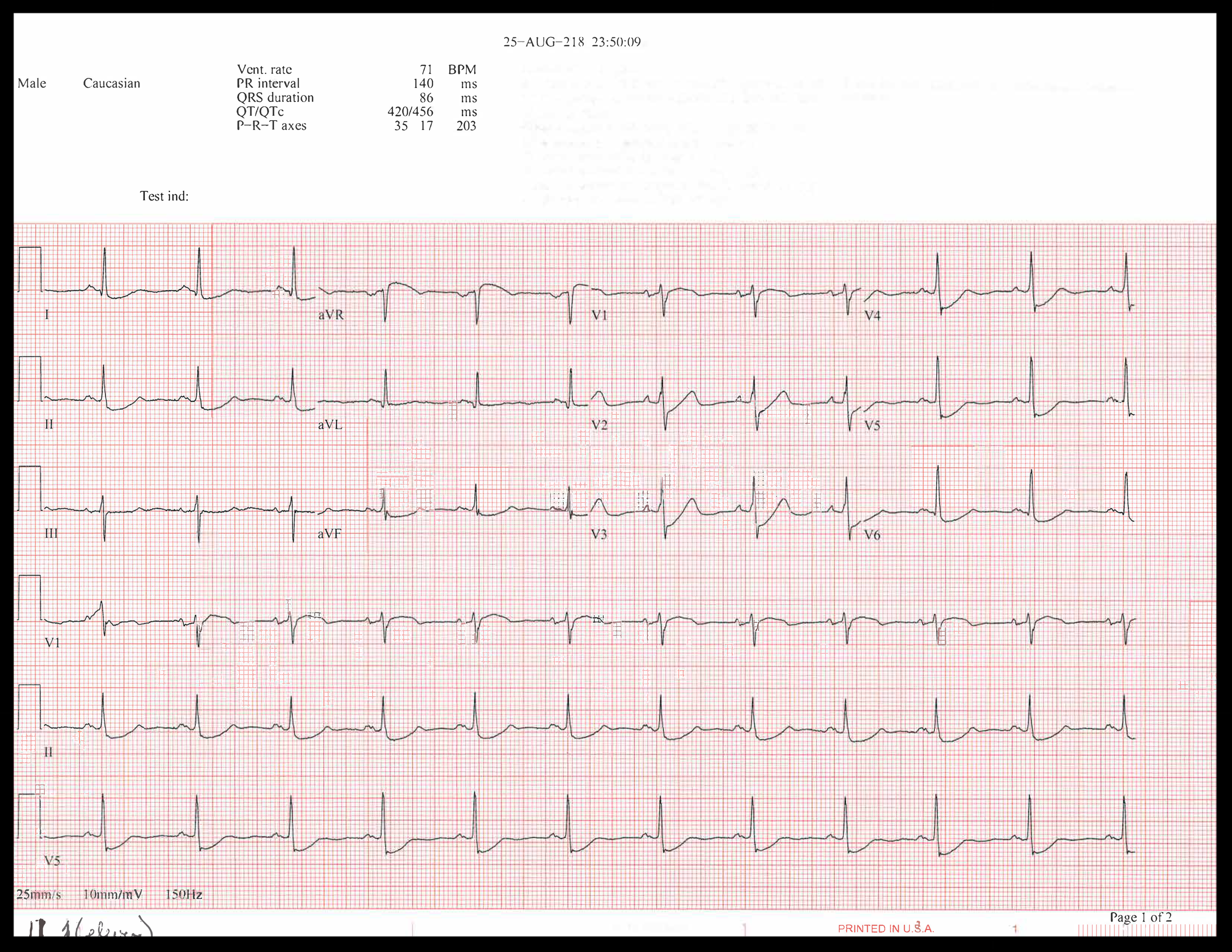 EKG of the week_Page_3.png
